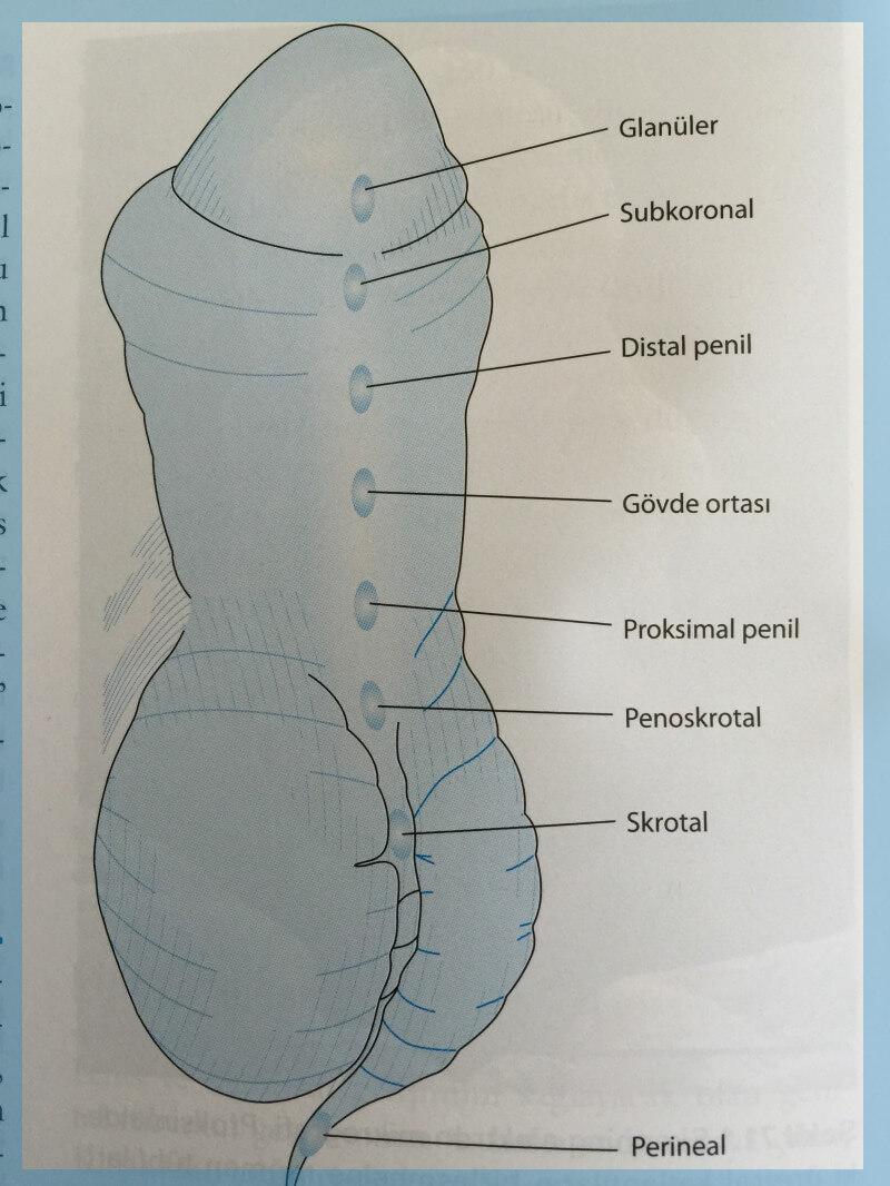 hipospadias antalya